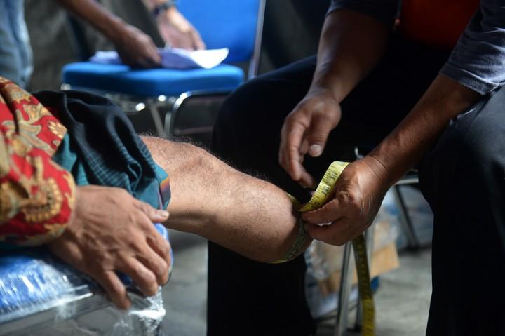 Dinsos Aceh Salurkan 100 Kaki dan Tangan Palsu