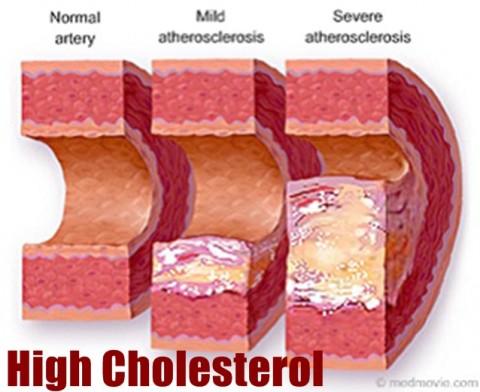 Mitos yang Salah tentang Kolesterol