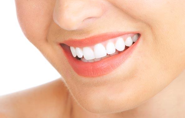 Cara Alami Membuat Gigi Putih Bersinar