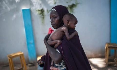 75 Ribu Anak Nigeria Berisiko Mati Kelaparan