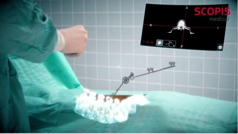 Dokter Bedah Kini Bisa Gunakan HoloLens