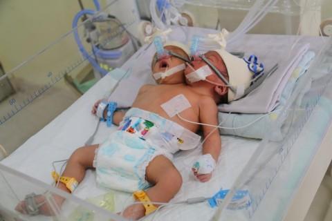 Bayi Kembar Siam Dempet Badan Asal Binjai Meninggal Dunia