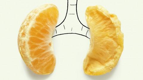 Perokok Pasif Juga Berpotensi Terkena Kanker Paru-paru