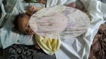 Bayi Penderita Sepsis di RS Adam Malik tak Punya BPJS