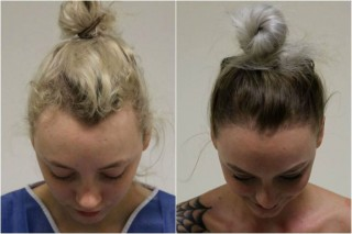 Wanita Ini Alami Traction Alopecia Akibat Menguncir Kencang Rambutnya