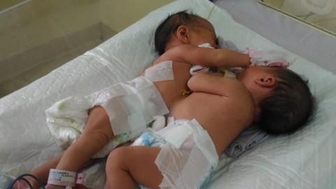 Bayi Kembar Siam Dempet Perut dan Dada asal Kisaran bakal Dioperasi
