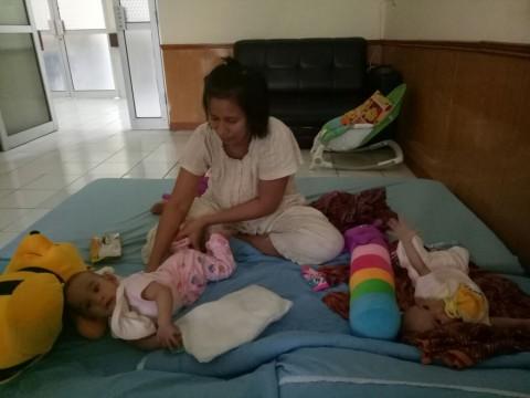 Bayi Kembar Siam Fahira-Sahira Membaik