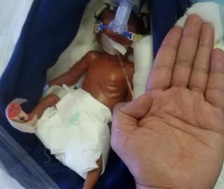 Perjuangan Bayi Terkecil di Asia untuk Bertahan Hidup