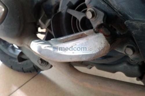 Jangan sepelekan peren vital pijakan kaki pada sepeda motor.