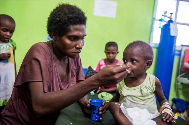 Penanganan pasien di RSUD Agats, Kabupaten Asmat, Papua. (ANT/M Agung Rajasa)