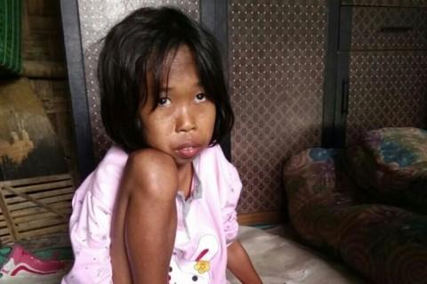 Sejak Januari, 59 Anak di Tangsel Menderita Gizi Buruk