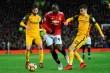 Prediksi MU vs Brighton: Ajang Pelampiasan United