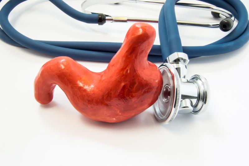 Ilustrasi penyakit maag. Foto: Shutterstock