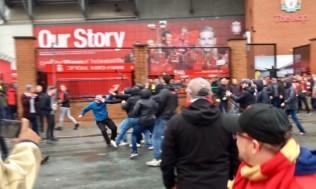 Jadi Korban Pemukulan, Kondisi Suporter Liverpool Kritis