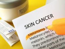 Deteksi Kanker Kulit dengan Metode ABCDE