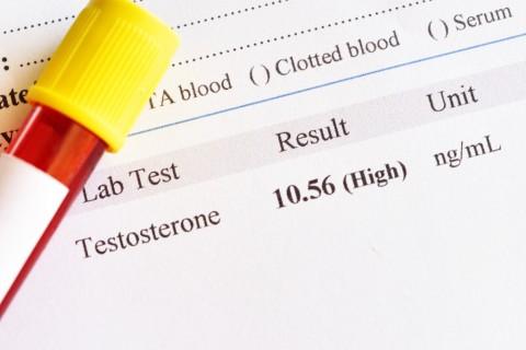 Kadar Testosteron Rendah Tingkatkan Risiko Penyakit Kronis pada Pria