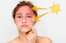 Ketahui Bahayanya jika Kulit Bumil Terkena <i>Sunburn</i>