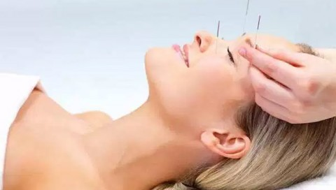 Akupunktur Bantu Atasi Insomnia Pasien Kanker