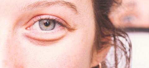 Pola Makan Tinggi Antioksidan Bantu Hilangkan Kantung Mata