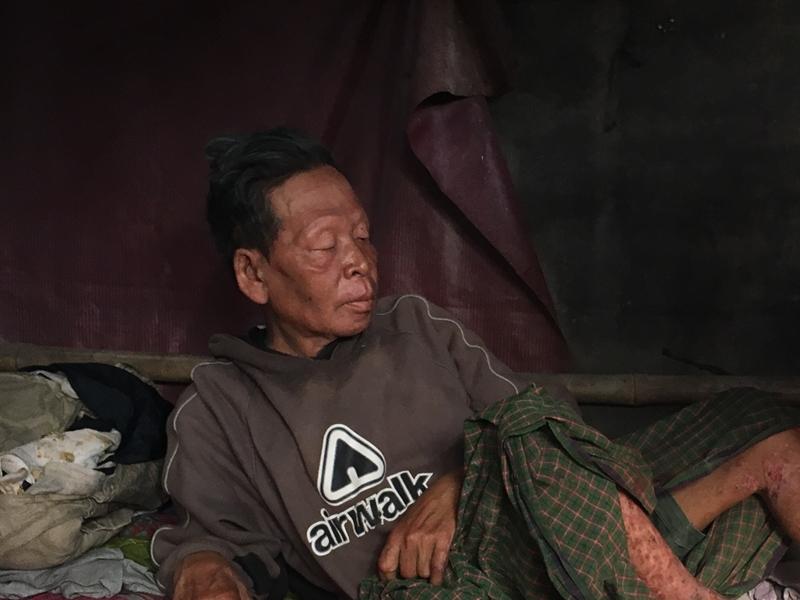 Endang, 51, terkulai di bedengnya di Pondok Jagung, kecamatan Serpong Utara, Tangerang Selatan, Minggu 16 September 2018. Medcom.id/Farhan Dwitama