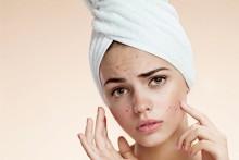 Bisakah Bekas Jerawat Dihilangkan Tanpa Perawatan Kecantikan?