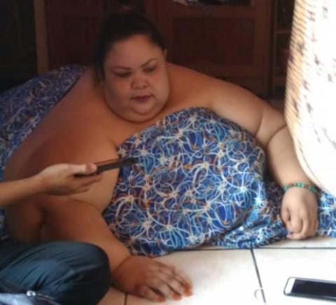 Penanganan Komprehensif untuk Kasus Obesitas Titi Wati