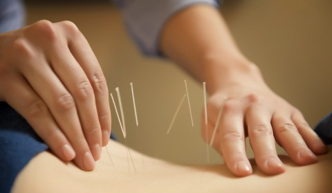 Ingin Hamil? Coba Terapi Akupunktur