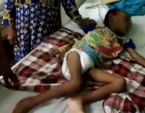 Bocah 7 Tahun di Karawang Menderita Gizi Buruk