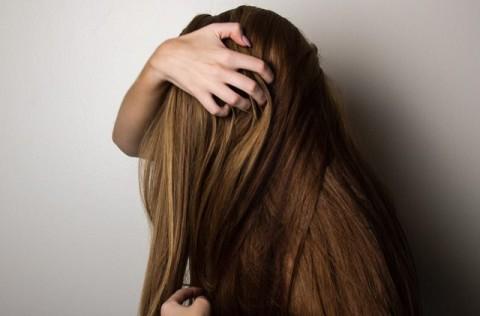 Perbedaan Ketombe dan Kutu Rambut
