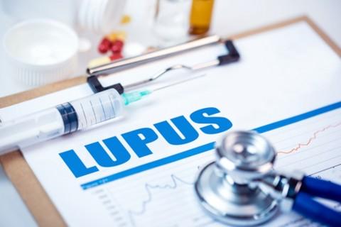 Lima Potensi Pemicu Penyakit Lupus