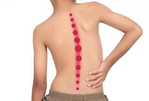 Penyebab dan Cara Pengobatan Skoliosis