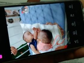 Bayi Kembar Siam Adam-Malik Berhasil Dipisahkan