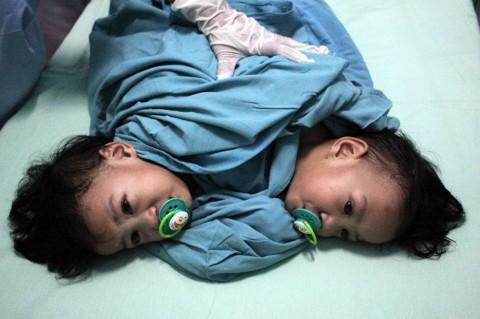 Kembar Siam asal Kendari Operasi Pemisahan di Surabaya