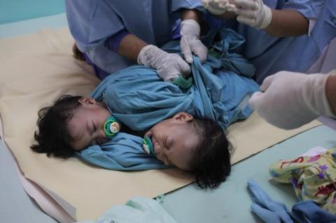 Kembar Siam Aqila dan Azila Jalani Operasi Pemisahan