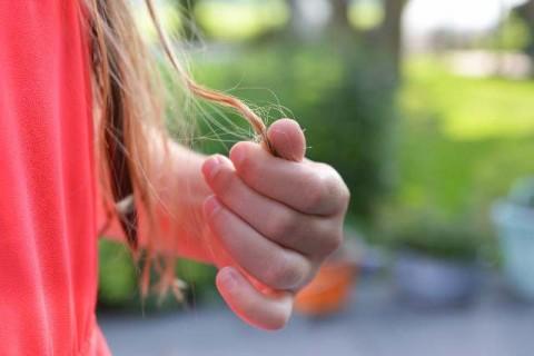 Pengobatan Alami untuk Mengatasi Rambut Rontok