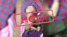 [Hoaks] Bayi Ini Memakan Usus Ibunya