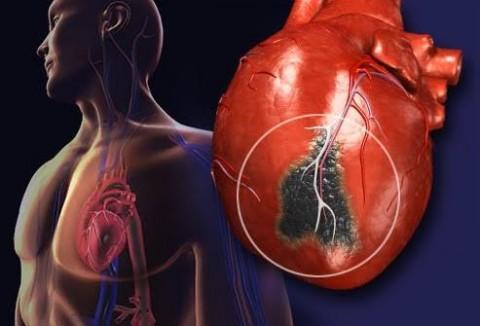 Tak Perlu Takut Periksa Jantung Menggunakan CT Calcium Score