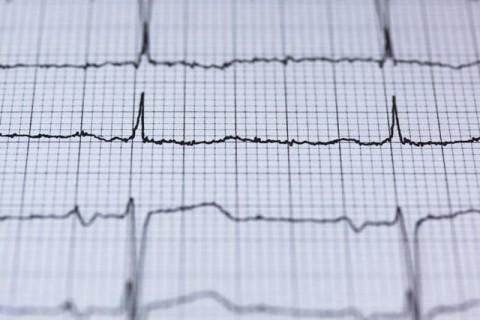 Tanda dan Gejala Penyakit Jantung Koroner