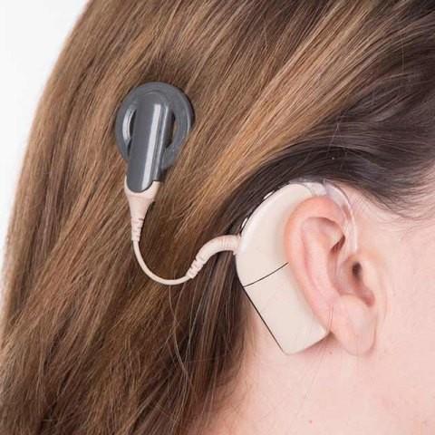 Metode Implan Koklea pada Anak dengan Gangguan Pendengaran