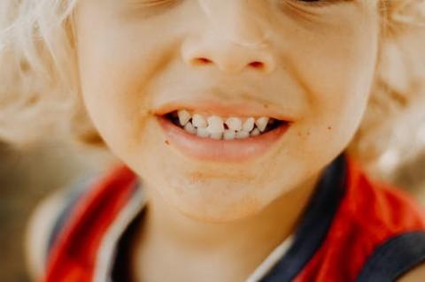 Benarkah Gigi Susu Berlubang Tidak Perlu Dirawat?