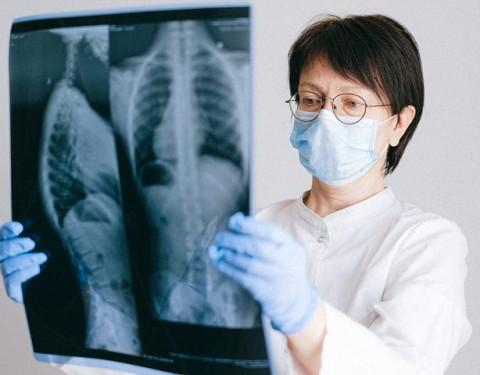 5 Gejala Penyakit Osteoporosis