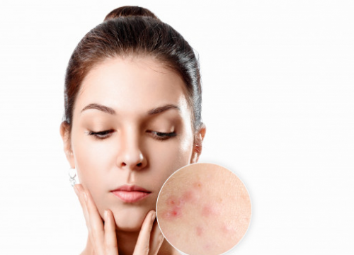 Jika kamu berjerawat, kemungkinan besar kamu memiliki jerawat vulgaris, yang bisa muncul di wajah, punggung, bahu, dan bokong. (Foto: Ilustrasi. Dok. Freepik.com)