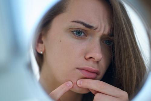 Jerawat ini muncul karena beberapa alasan seperti gesekan dan perkembangan bakteri di sekitar wajah. (Foto: Ilustrasi. Dok. Freepik.com)
