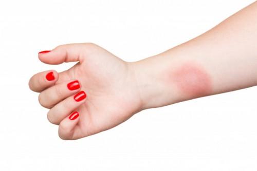 Setiap hari kita berisiko terkena luka. Ini bisa luka ringan yang bisa diurus di rumah sampai luka parah yang membutuhkan bantuan profesional. (Ilustrasi/Pexels)