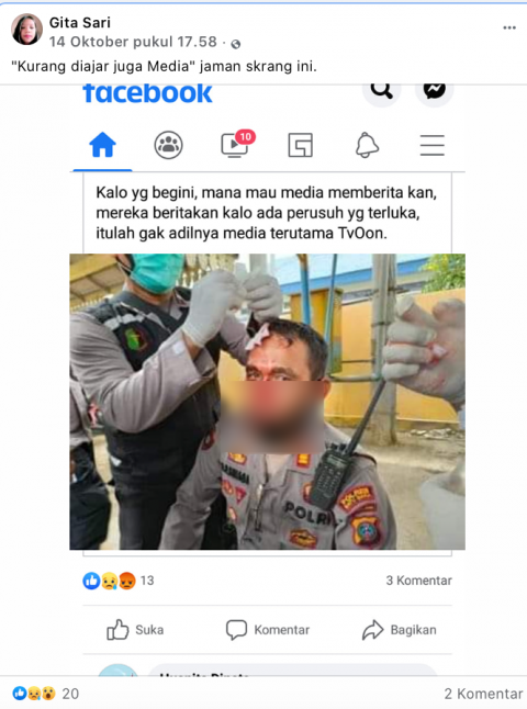 [Cek Fakta] Tak Diliput Media Polisi Terluka saat Kawal Demo UU Omnibus Law? Cek Faktanya