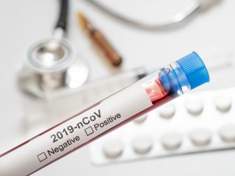 Indonesia Registers 3,779 New Coronavirus Cases, Total 444,348