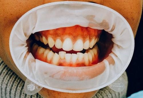 Jika sariawan dibiarkan dan tidak ditangani dengan baik, peradangan tersebut bisa membahayakan bahkan bisa berujung pada kanker mulut. (Ilustrasi/Pexels)