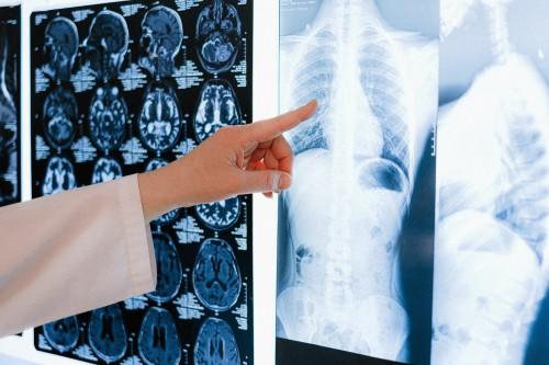 Penyakit Paru Obstruksi Kronik (PPOK) merupakan penyebab nomor 4 kematian terbanyak di dunia. (Ilustrasi/Pexels)