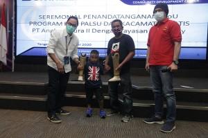 Angkasa Pura II dan Yayasan Kick Andy Salurkan Bantuan Kaki Palsu Gratis