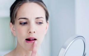 Apakah Penyakit Herpes Bisa Disembuhkan?